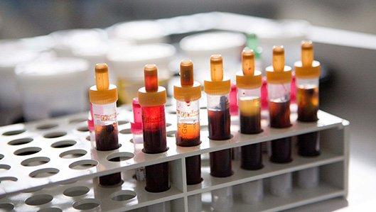 Klinik für Innere Medizin und Gastroenterologie Onkologie / Hämatologie
