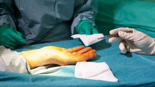 Klinik für Plastische und Ästhetische Chirurgie / Handchirurgie